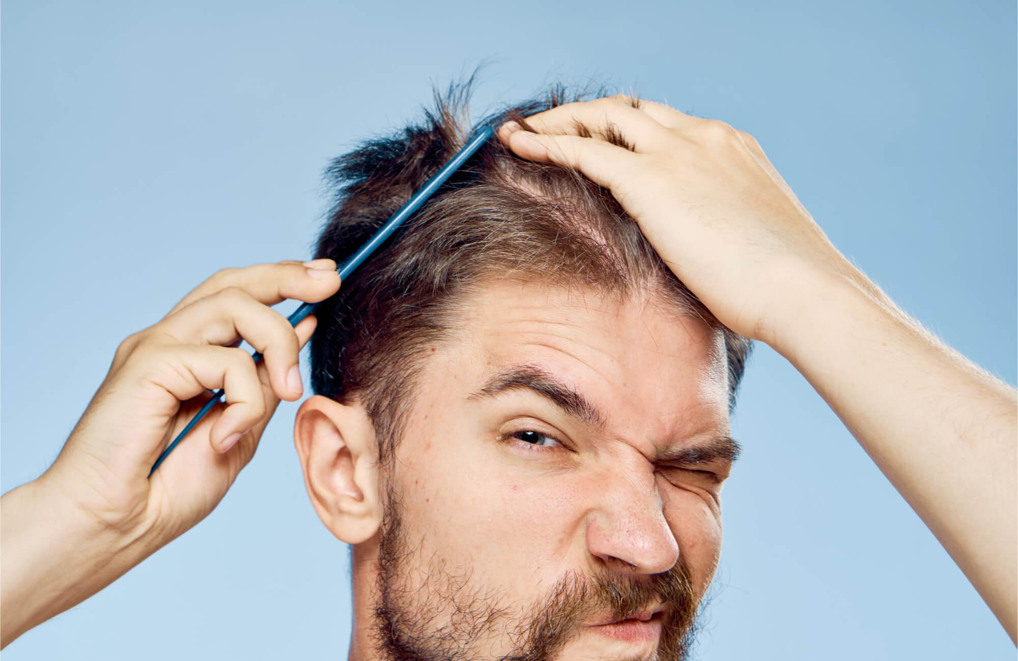 Pomade dan gel memiliki fungsi dasar yang sama yaitu untuk merawat rambut Anda Pomade terbuat dari bahan bahan alami sehingga dapat menjaga dan memiliki